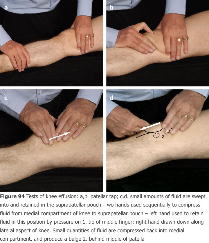 Clinical examination tests for effusion tests of knee effusion ab patellar tap cd ccuart Images